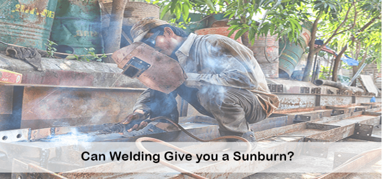 Can You Get Sunburn from Welding? Facts, Treatment & Caution